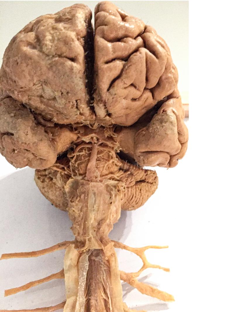 plastinated brain