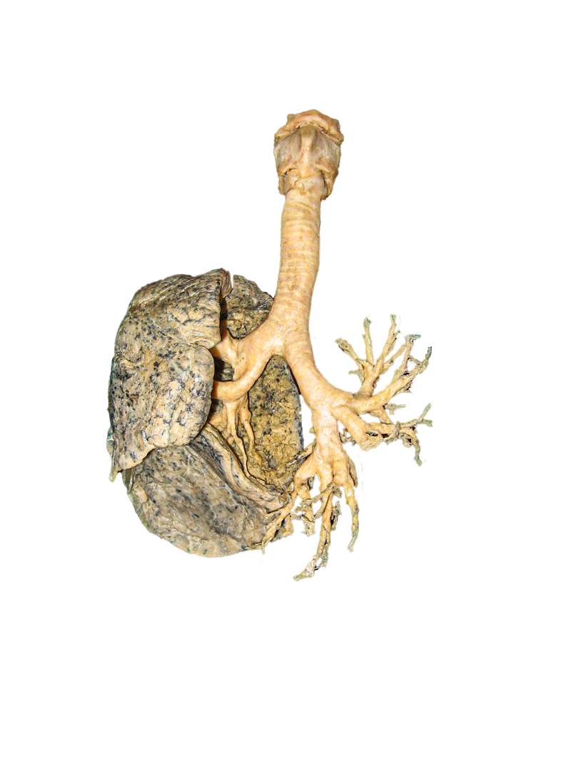 plastinated lung