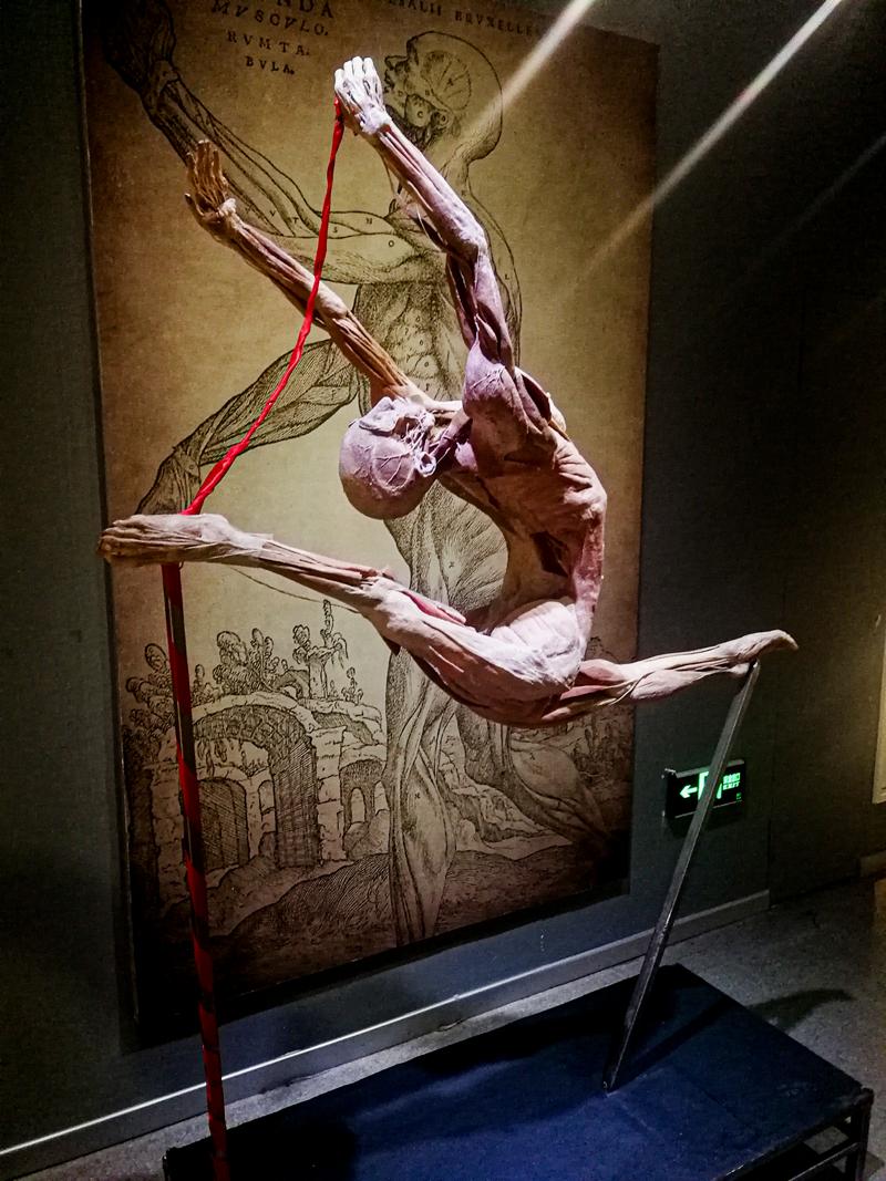 gymnast plastinared